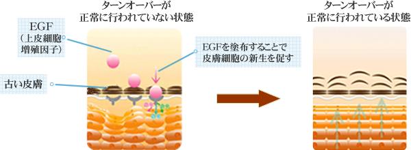 EGFを塗布することで皮膚細胞の新生を促す